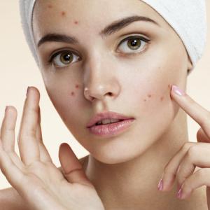 منتجات معالجة حب الشباب والمشاكل الجلدية
